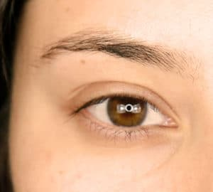 Before Image of Brow Transformation