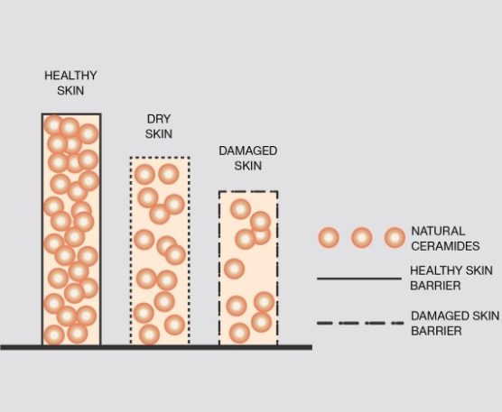 Depiction of healthy vs damaged skin cells