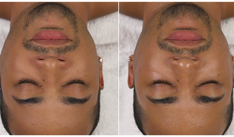 Pore-smoothing glycolic peel - before and after photos