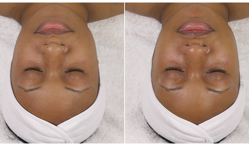 Anti-aging retinol peel - before and after photos
